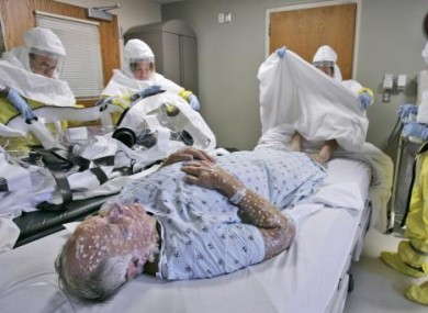 Smallpox victim posed by model at the Nebraska biocontainment unit in the US.