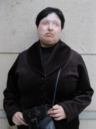 Ameneh Bahrami, photographed outside a hospital in Barcelona, Spain, in March 2009.