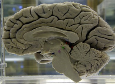 The brain is the part of the body affected by Huntington's disease