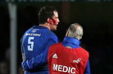 Adrian Flavin: 'No-one deserves to have their head sliced open by a stamp'