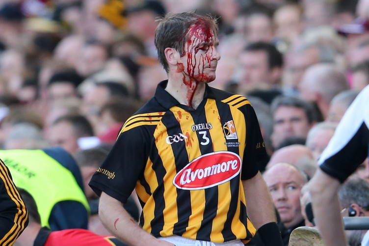 Image result for hurling injuries