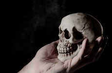 Someone donated a human skull to a charity shop