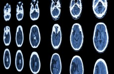 """""""Every minute counts."""" – Study shows why treating strokes immediately is vital"""