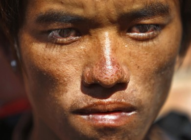 Sete Tamang, 20, avalanche survivor, waits to receive the bodies of his colleagues outside a morgue at Teaching Hospital in Katmandu, Nepal.