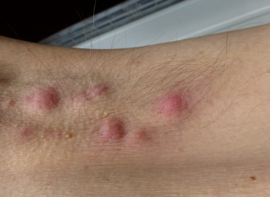 An example of the sores.