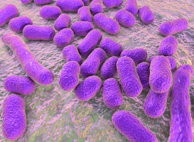 The antibiotic resistant superbug can be fatal patients who contract it.