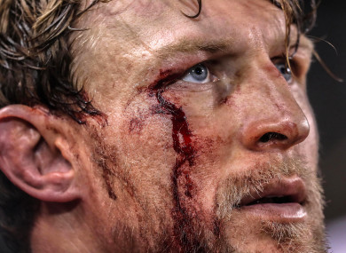 Chiefs' Lachie Turner shed more than his fair share of blood.