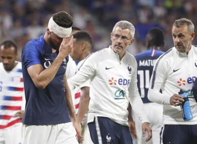 Giroud walks off after a clash of heads.