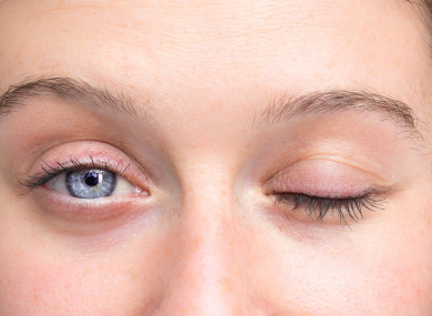 AFP can cause paralysis including difficulty moving eyes and drooping eyelids.
