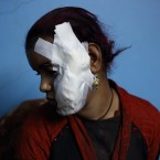 Amira Arafa who was injured Saturday during clashes in Aswan recovers in a relative's house, as her own was damaged in fighting that left at least a score dead, in the southern city of Aswan, Egypt. (AP Photo/Mohamed Ali Eddin)<span class=