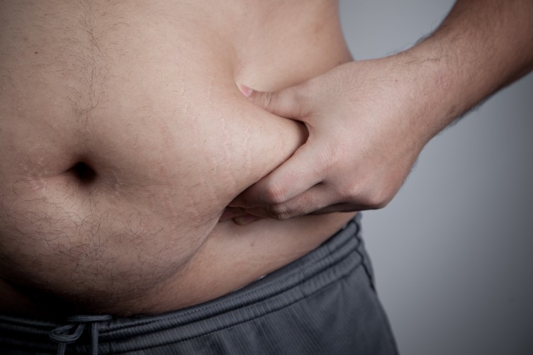 Overweight people should pay more tax  Others can't pay for our folly