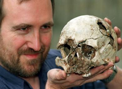 The skull of Cheddar Man