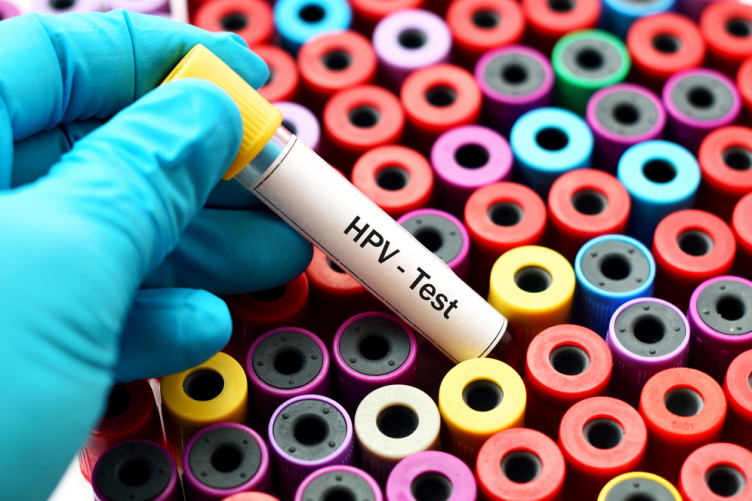 hpv virus pozitivan pastile pentru viermi în stomac