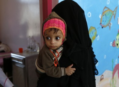 A mother carries her malnourished child as the child receives medical treatment in Al-Sabeen hospital in Sanaa, Yemen, in February.